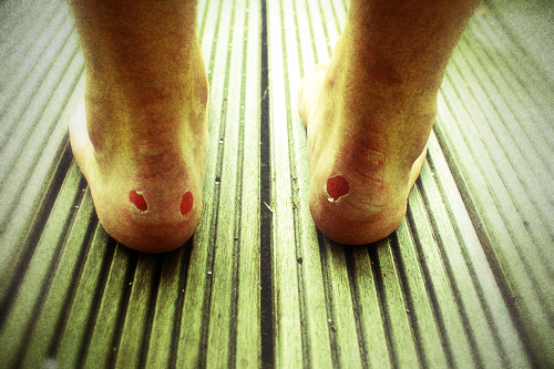Blisters-on-your-feet